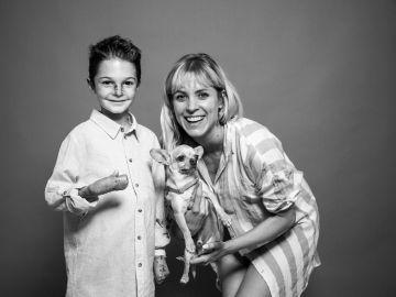#YoVendoMiCuerpo, la campaña para concienciar sobre la enfermedad Piel de Mariposa